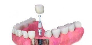 impantes dentales