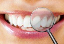 periodontitis ucm