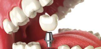 protesis dental