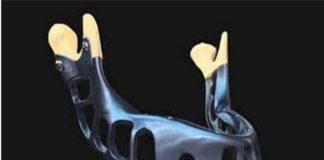 regeneracion-osea-noticias-dentales