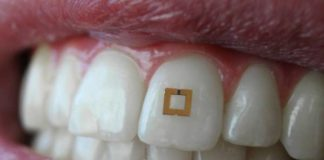 sensor dientes