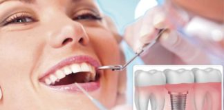 implantes-dentales-en-madrid
