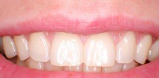 esmalte dental