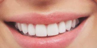 tercera denticion