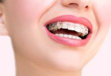 ortodoncia-en-adultos