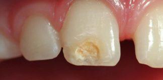esmalte dental regeneracion