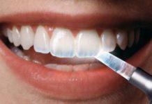 gel esmalte dental