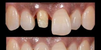 rehabilitacion estetica diente anterior