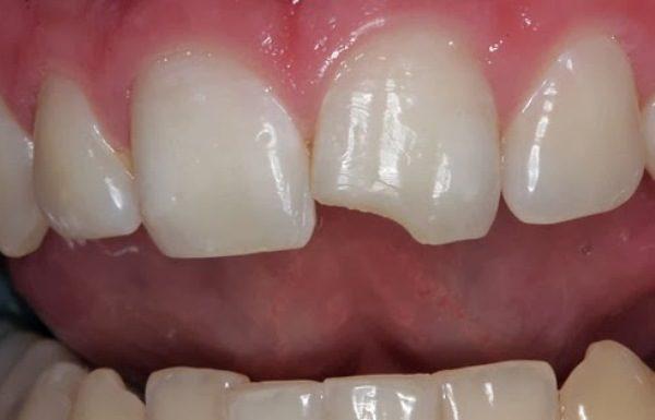 reinsercion dental