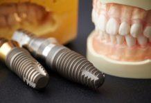 implantes dentales regeneracion