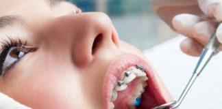 ortodoncistas españa