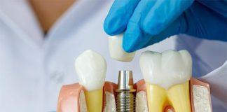 implantologia formacion