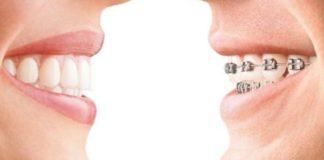 ortodoncia riesgo caries
