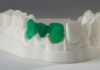 impresion 3d dientes