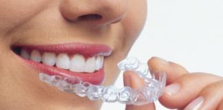 alineadores invisibles, limpieza alineadores invisibles, ortodoncia invisalign, invisalign, cuidados invisalign