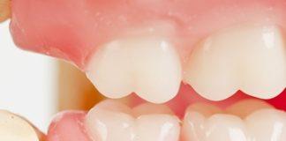 molares mandibulares anestesia
