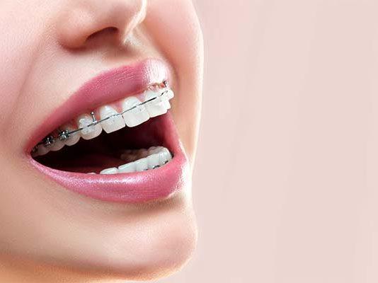 protesis ortodoncia