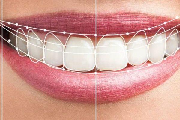 Estética dental, ¿por qué es tan importante para las personas? | Noticias  Dentales