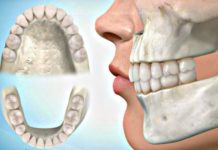 oclusion dental