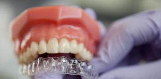 invisaling, brackts, ortodoncia invisible, ortodoncia tradicional