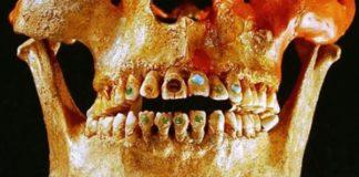 adornos dentales