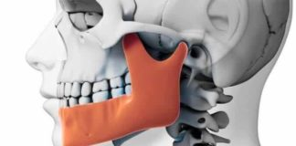 desorden temporomandibular