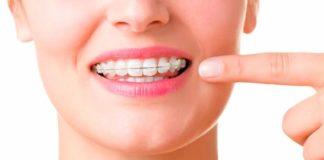 adultos ortodoncia