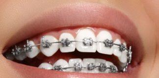 ortodonca