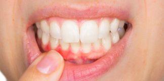 españoles problemas dentales
