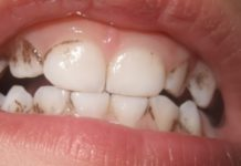 placa dental negra