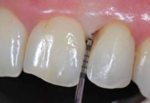 bolsas periodontales