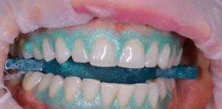 blanqueamieto dental