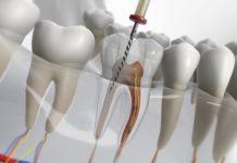Endodoncias ¿Cómo pueden llegar a complicarse?