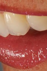 Picture of Multident Implantes Dentales